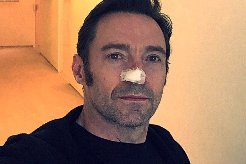 Hugh Jackman carcinoma  https://twitter.com/RealHughJackman/status/831243114761297920/photo/1